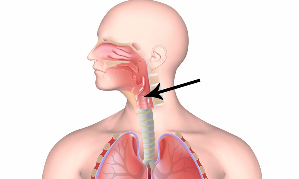 GIR TUNG PUST: Det vanligste symptomet ved stemmebåndsdysfunksjon er tungpust, og da spesielt ved innpust. Det kan også være tungt å puste ut, noe som er et av de vanligste symptomene ved astma. Foto: NTB Scanpix /Shutterstock