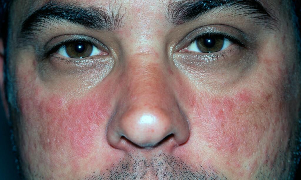 UTSLETT: Mann på 35 år med klassisk lupus-utslett i ansiktet, med form som en sommerfugl. Utslett ulike steder på kroppen kan være symptomer. Foto NTB Scanpix / Science Photo.