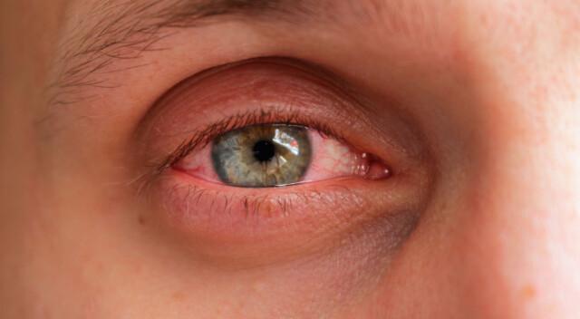 allergi mot kontaktlinser