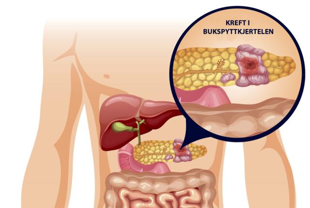 Bukspyttkjertel Smerter