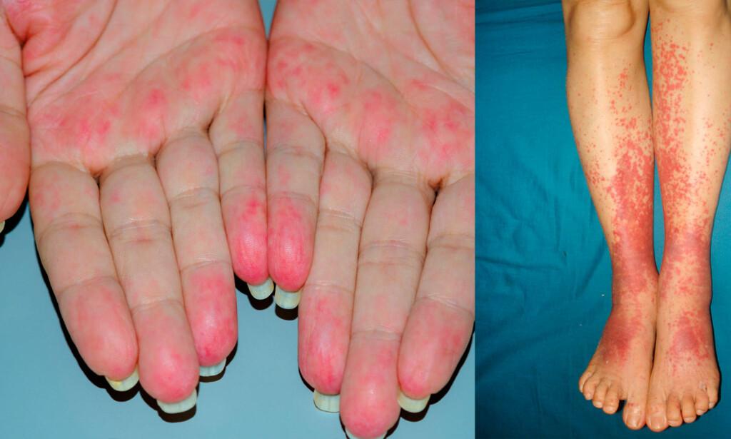 SMÅKARSVASKULITT: På bildet ser vi kutan vaskulitt - som rammer blodårene i huden. Vaskulitt arter seg på forskjellige måter, og sykdommen kan ramme kar inne i kroppen, som ikke er synlig. Fopto NTB Scanpix / Shutterstock
