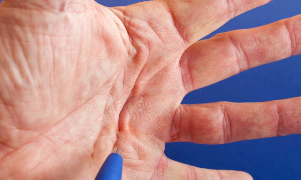 KLUMPER OG KNUTER I HÅNDFLATEN: Det er bindevevsplaten i hånden som blir fortykket. Foto: NTB Scanpix / Shutterstock