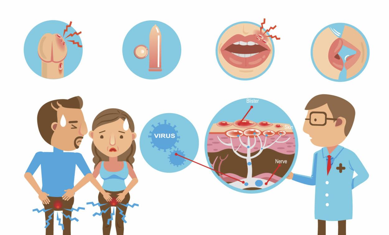 SMITTE : Herpes gir smertefulle blemmer og sår. Kondom reduserer risiko for smitte i underlivet. Illustrasjon: NTB Scanpix / Shutterstock