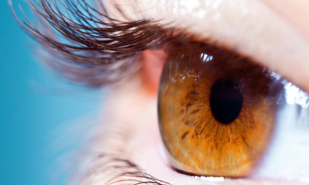 VANLIG Å FÅ LEAMUS HER: Tilstanden er vanligst rundt øyet, men forekommer i alle muskler. Foto: NTB Scanpix