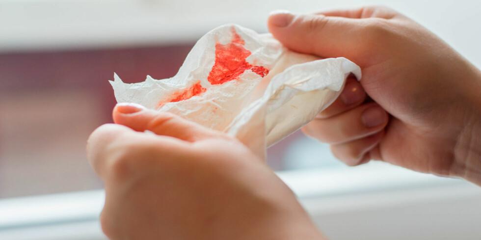 BLØR MYE: Ved økt blødningstendens kan symptomene være blåmerker eller blødninger i huden, kraftig menstruasjonsblødning, neseblødning eller blod i urinen. Foto: NTB Scanpix / Shutterstock