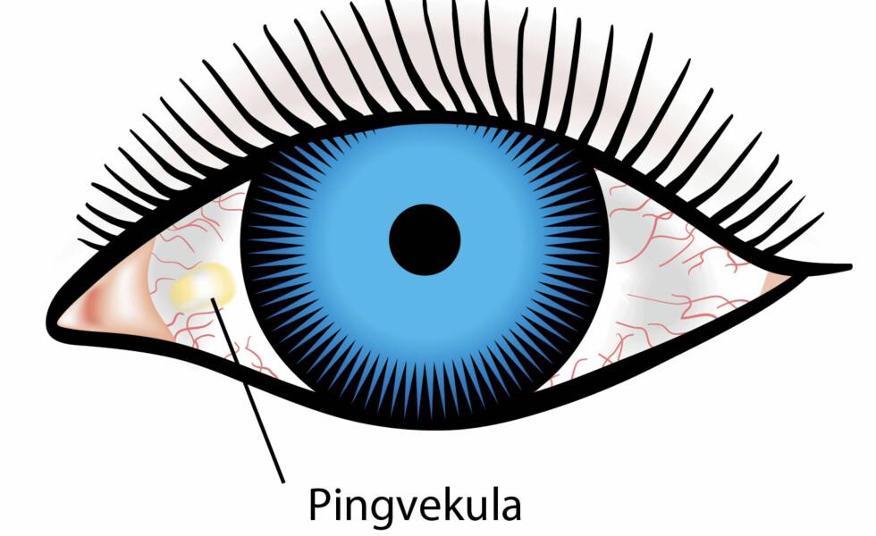 PINGVEKULA: En ufarlig tilstand som ofte rammer eldre mennesker. Man ser en gulaktig flekk på det hvite på øyet. Pingvekula er ufarlig og forårsaker sjeldent plager eller synsforstyrrelser. Illustrasjon: NTB Scanpix / Shutterstock