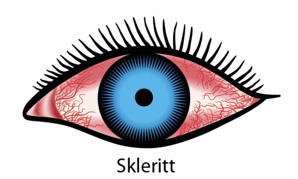 SYMPTOMER: Begge øyne blir rammet samtidige med nedsatt syn. Illustrasjon: NTB Scanpix / Shutterstock.