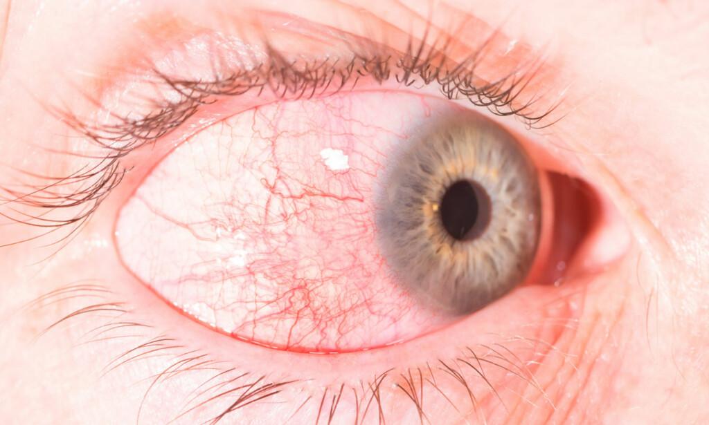 BETENNELSE I ØYET: Ved episkleritt er rødt øye, tåreflod og ubehag symptomer. Foto: NTB Scanpix / Shutterstock