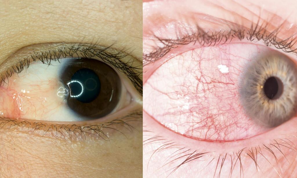 UNDERSØKELSE HOS ØYELEGE: Her ser du til venstre pterdygium og til venstre episkleritt. Foto: NTS Scanpix / Shutterstock.