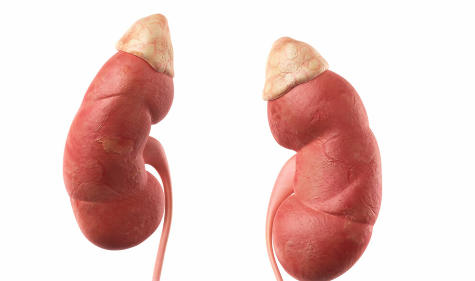 SVIKT I BINYRENE: Ved Addisons sykdom blir binyrebarken blir angrepet av kroppens eget immunsystem. Illustrasjon: NTB Scanpix / Shutterstock