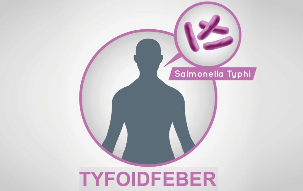 TYFOIDFEBER: Rammer som regel nordmenn på eller etter utenlandstur. Høy feber er et av symptomene. Foto: NTB Scanpix / Shutterstock