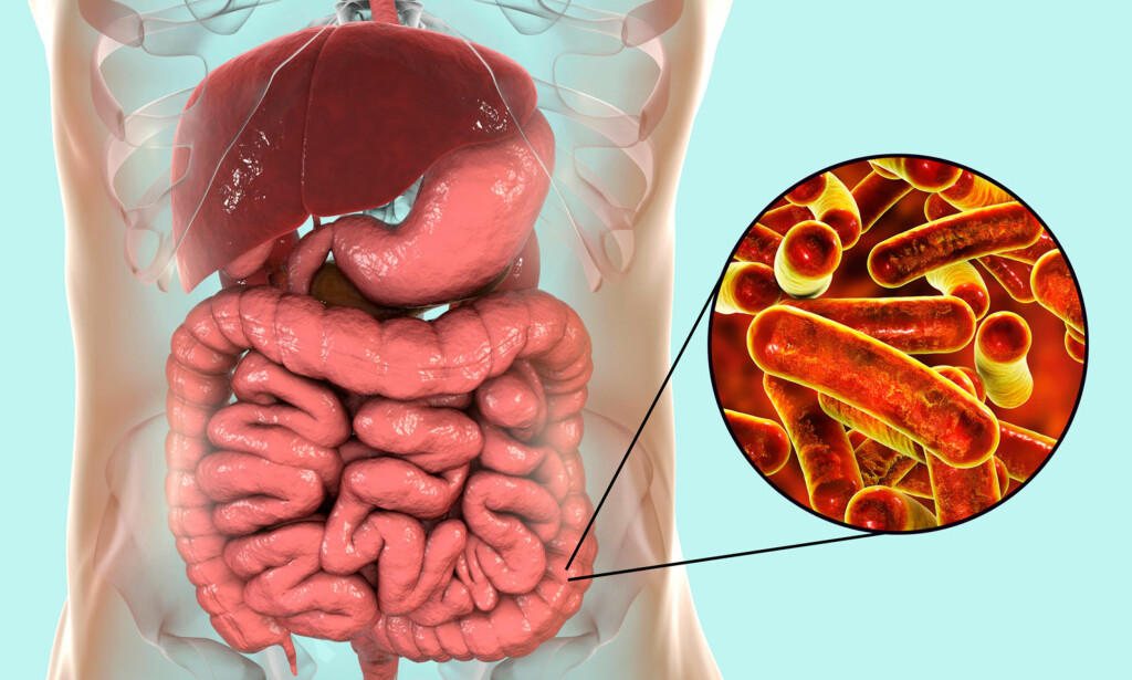 SHIGELLABAKTERIER: Gir betennelse i tarmen og diarè. Foto: NTB Scanpix / Shutterstock