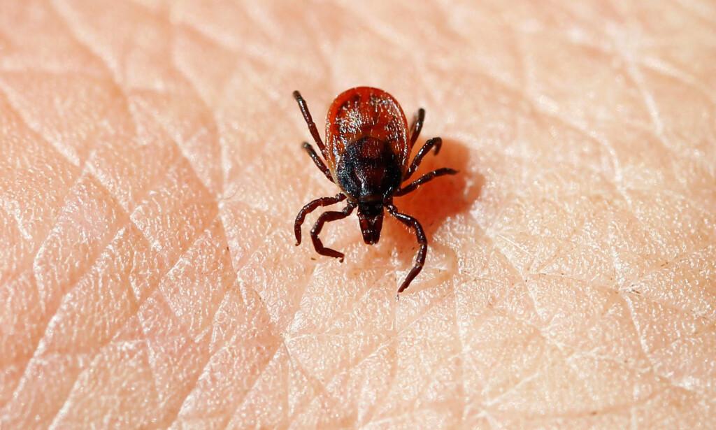 FLÅTT: En flått kravler på menneskehud. Når den biter seg fast og suger blod, vil kroppen øke mange ganger i størrelse. Foto: Erlend Aas / NTB scanpix