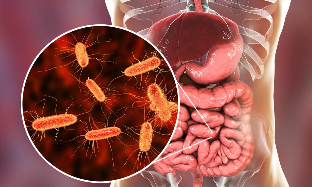 NORMALFLORA I TARMEN: E. coli er en del av normalfloraen, men visse typer gir blodig diaré.