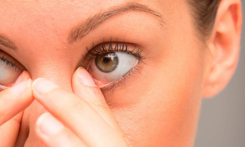 HAR NOE I ØYET: Det kan klø, svi, øyet kan bli rødt og tårene renner. Foto: NTB Scanpix / Shutterstock