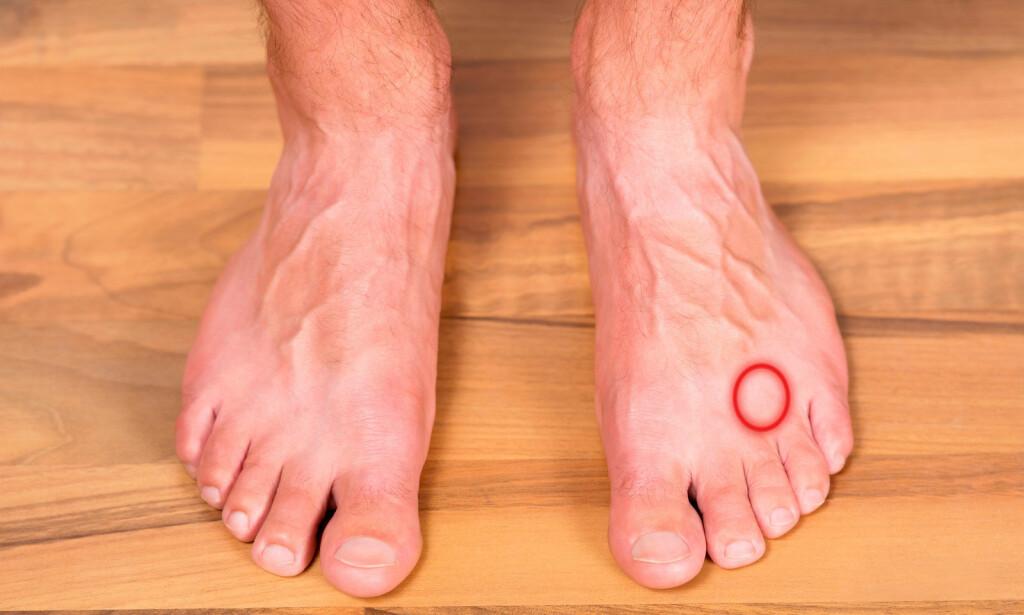 SMERTER I FOTEN: Smerte mellom 3. og 4. tå kan være tegn på Mortons nevrom. Foto: NTB Scanpix/Shutterstock.