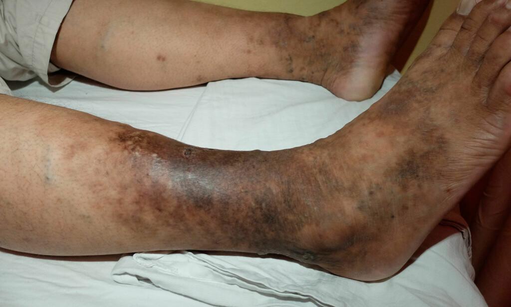 LEGGSÅR: Her bilde av venøst leggsår med eksem og mørk pigmentering. Foto: NTB Scanpix/Science Photo Libary