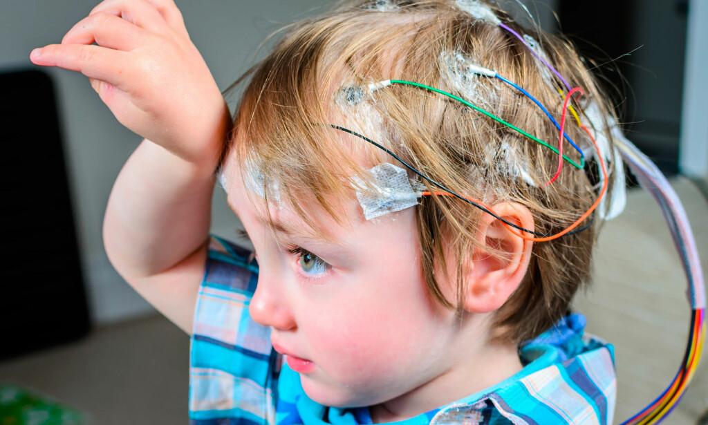 EEG UNDERSØKELSE: Det viktigste bruksområdet til EEG er utredning av epilepsi. Undersøkelsen er egnet for både voksne og barn. Foto: NTB Scanpix/Shutterstock