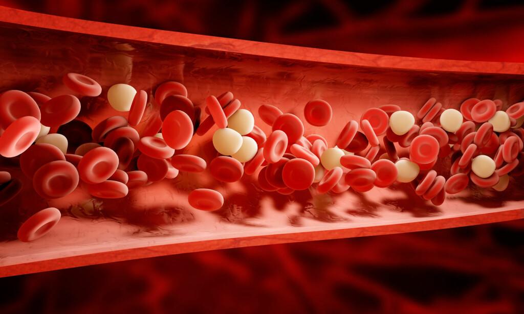 RØDE OG HVITE BLODCELLER: To viktige bestanddeler av blodet. Illustrasjonen viser celler i sterkt forstørret i en blodåre. Illustrasjon: NTB SCanpix / Shutterstock