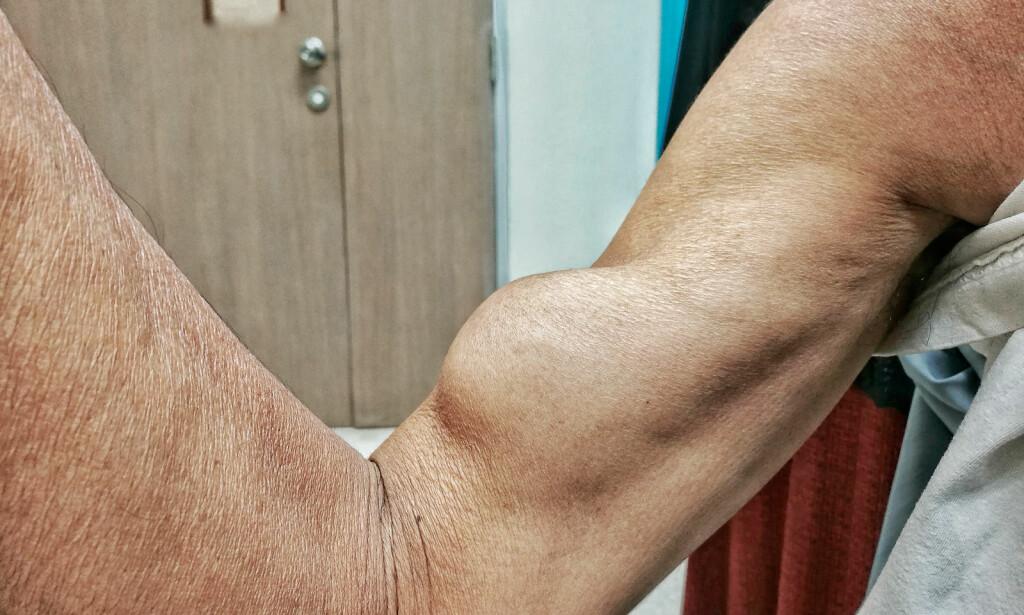 BICEPSRUPTUR: En markert kul i nedre del av overarm kan være et tegn på at en eller begge bicepssenene har blitt revet av. Denne skaden er vanligst hos middelaldrende og eldre mennesker. Foto: NTB SCANPIX/Shutterstock