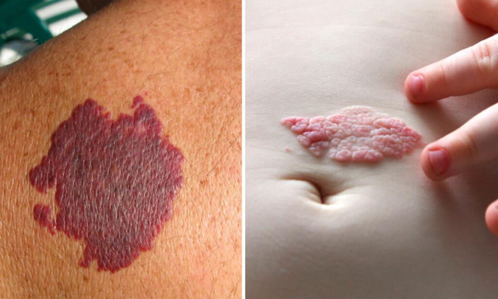 ULIKE FØDSELSMERKER: Noen fødselsmerker vil gradvis forsvinne. Jordbærmerker (til høyre) forsvinner ofte før barnet begynner på skolen. Portvinsflekker deriomot (til venstre) Mens det er ikke tilfelle for portvinsflekker (til venstre). De forsvinner ikke. Foto: NTB Scanpix/Shutterstock.