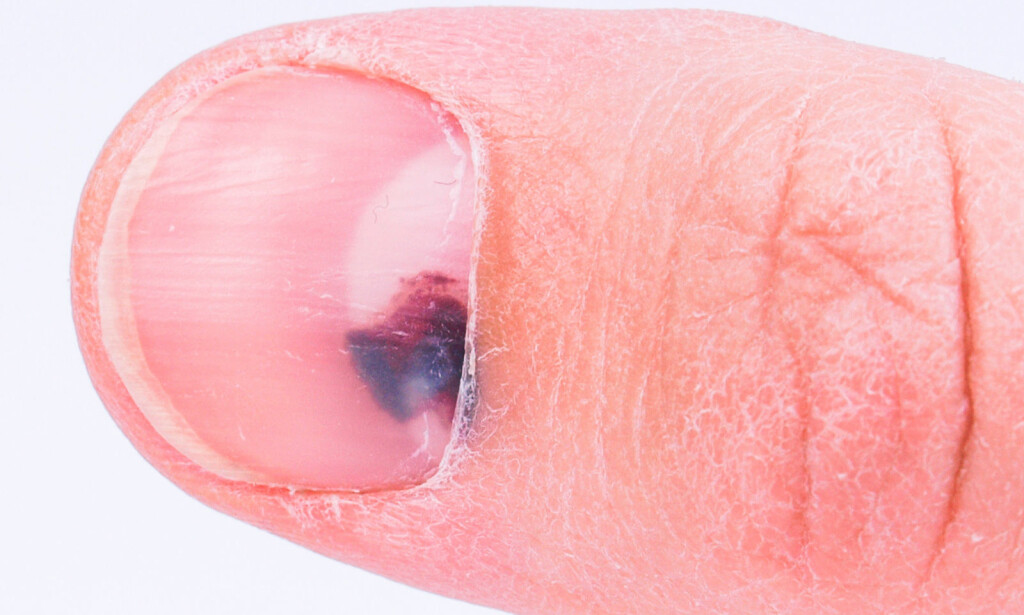 MØRK FLEKK PÅ NEGL: Tegn på en skade. Foto: NTB Scanpix/Shutterstock