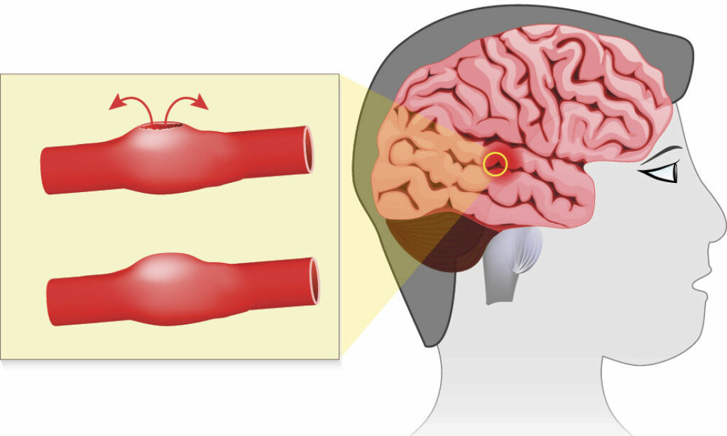 ANEURISME I HJERNEN: Når en utposning på blodåre i hjernen sprekker, vil blodet renne ut i et rom mellom hjernehinnene. Foto: NTB Scanpix/Shutterstock