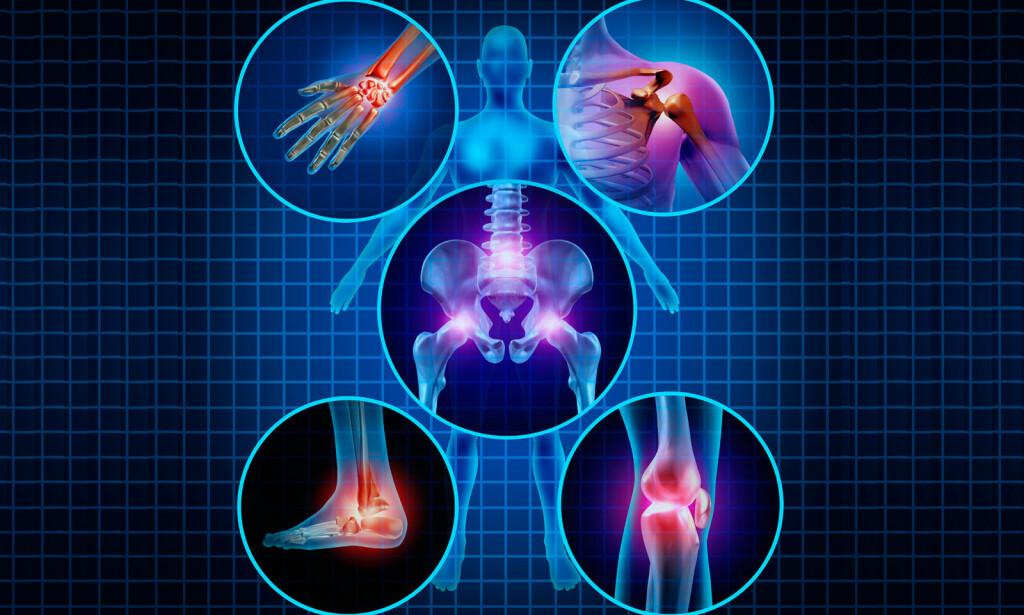 SMERTER OG STIVHET: Blir ledd smertefulle, hovner opp eller blir røde og varme, bør du kontakte lege. Foto: NTB Scanpix/Shutterstock