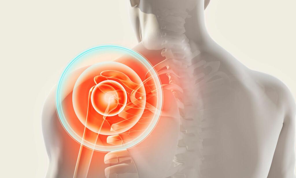 SMERTER I SKULDEREN: Rotatorcuffen (sener), slimposer selve leddet har forandringer som medfører smerter. Musklene tilknyttet skulderen begynner å oppføre seg annerledes enn normalt også. Illustrasjon: NTB Scanpix/Shutterstock