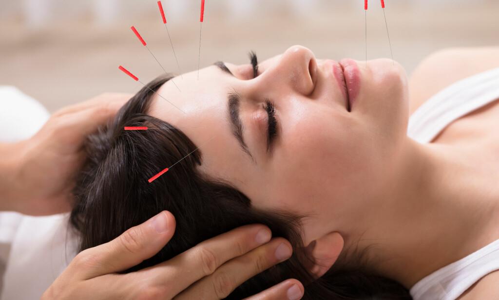 NÅLER I HODE: Akupunktur er blant de mest populære formene for alternativ medisin i Norge. Mange aktører tjener gode penger på behandlingen, men fungerer det? Foto: NTB / Scanpix / Shutterstock.