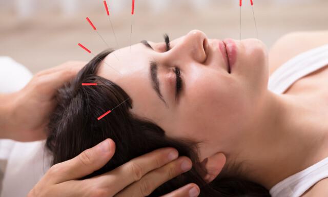 akupunktur mot allergi