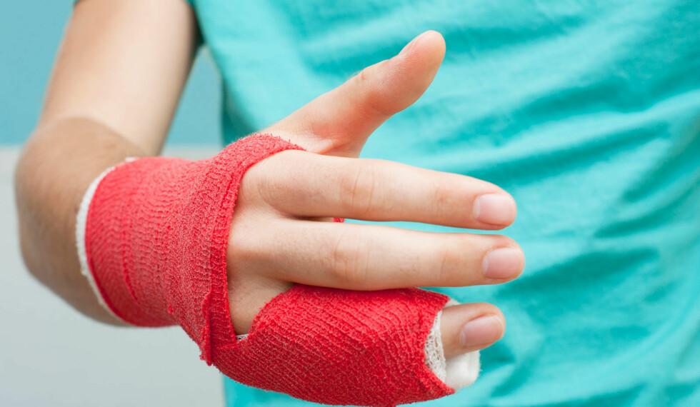 NABOTEIPING: Ved ukomplisert fingerbrudd, er taping med nabofinger den beste behandling. Man bør gipser ikke fingre, da fingre fort stivner hvis de ikke får bevegelighet. Foto: NTB Scanpix/Shutterstock