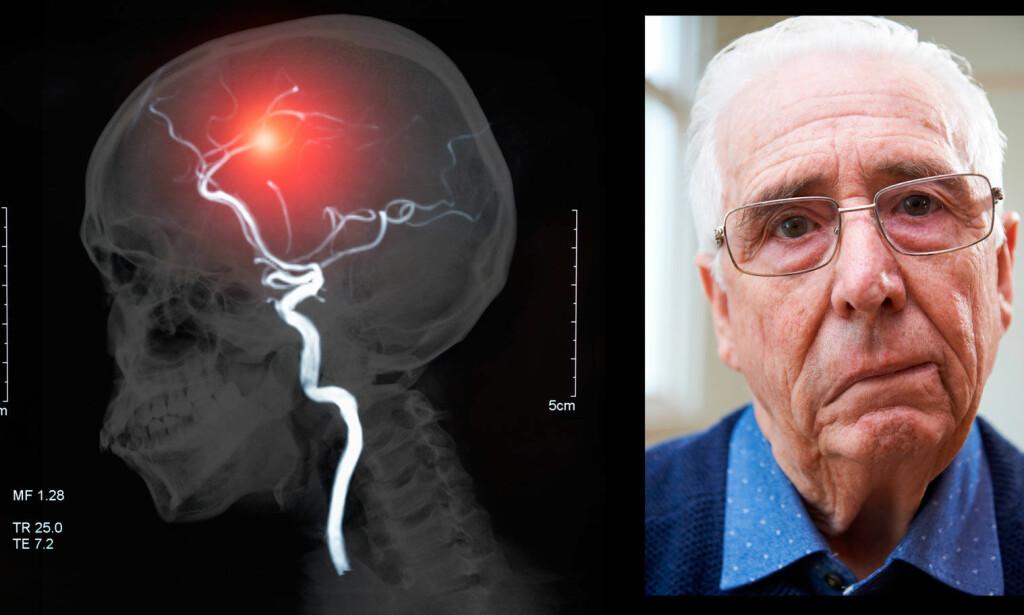SYMPTOMER PÅ HJERNESLAG: Halvsdig lammelse i ansikt og i kroppen, og talevansker, er noen av symptomene man skal være oppmerksom på. Foto: NTB Scanpix/Shutterstock
