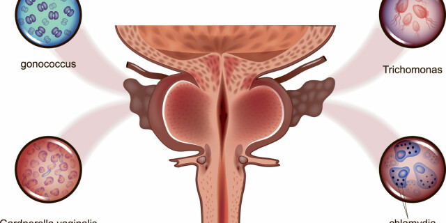 prostate gland anatomy 3d prosztata a férfiak kezelésében