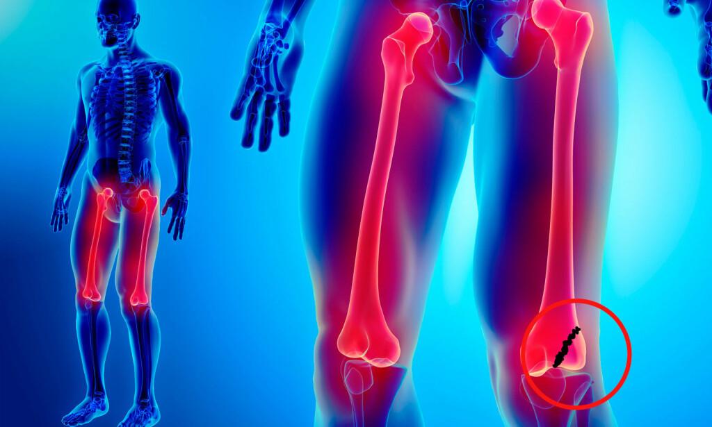 BRUDD NEDERST PÅ LÅRBEIN: Et komplisert brudd som også kan ramme kneet. Illustrasjon: NTB Scanpix/Shutterstock.