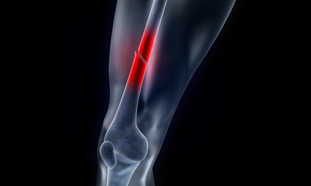 LÅRBEINSBRUDD: Når lårbeinets skaft brekker kan det oppstå stor blødning. Dette er et komplisert brudd som opereres hos voksne. Foto: NTB Scanpix/Shutterstock