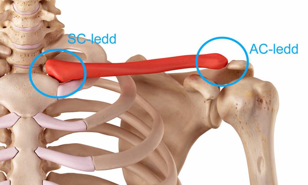KRAGEBEINET: Når kragebeinet (rødt) går ut av ledd, er det vanligvis AC-leddet som er rammet.