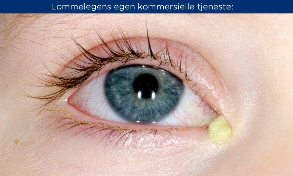 ØYEKATARR: Symptomene er gult puss, hevelse, svie, rødhet eller tåreflod. Foto: NTB Scanpix/Shutterstock