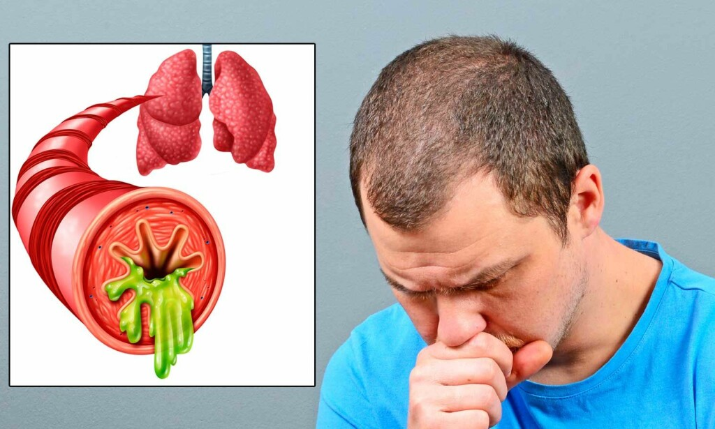 HOSTER OG HOSTER: Kronisk bronkitt er vedvarende hoste, som ikke går over. Slimhinnene i bronkiene er tykkere og produserer mer slim. Foto: NTB Scanpix/Shutterstock