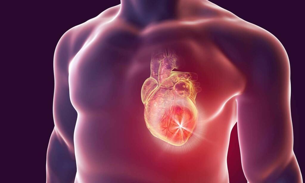BRYSTSMERTER: Symptomer på myokarditt kan være brystsmerter, rask eller uregelmessig hjerterytme. Illustrasjon: NTB Scanpix/Shutterstock