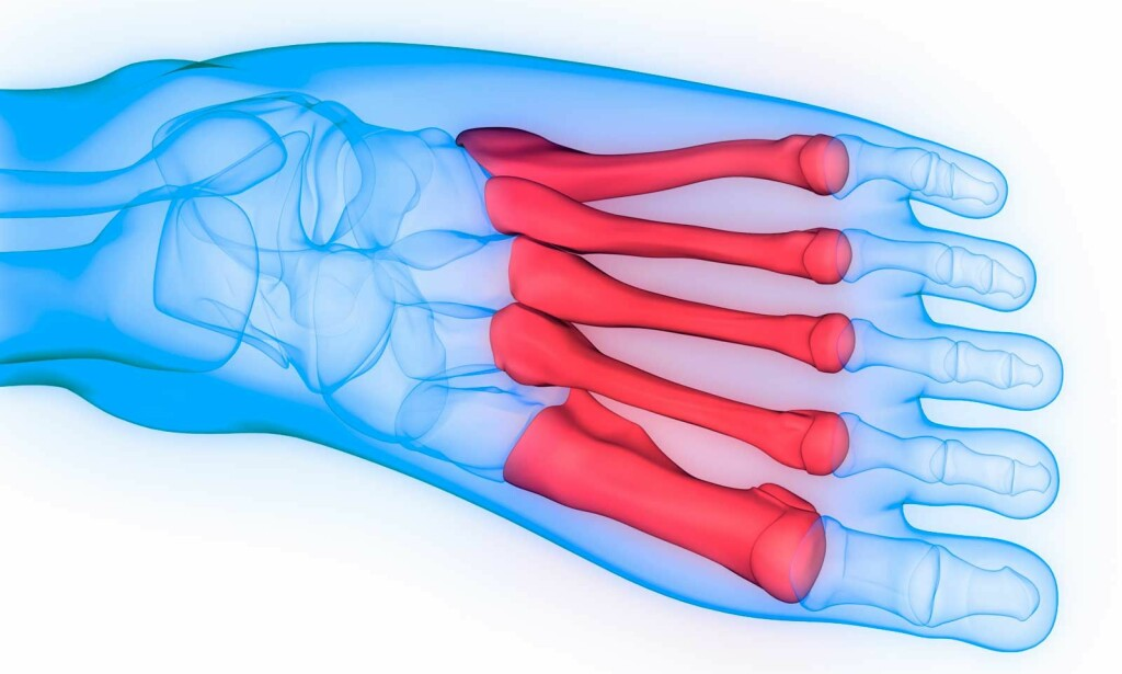 BRUDD I FOTEN: Mellomfotsbein kan brekke. Smerte, hevelse og vansker med å gå er symptomene. Foto: NTB Scanpix/Shutterstock.