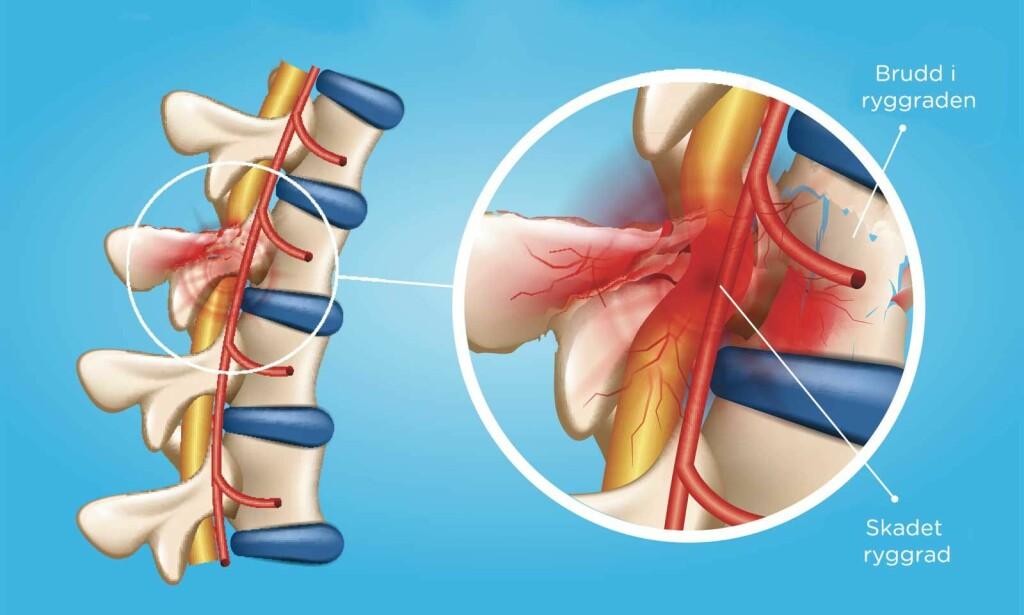 BRUDDSKADER: Her er et eksempel som viser at bruddskader i rygg etter et traume har skadet ryggmarg. Illustrasjon: NTB Scanpix/Shutterstock
