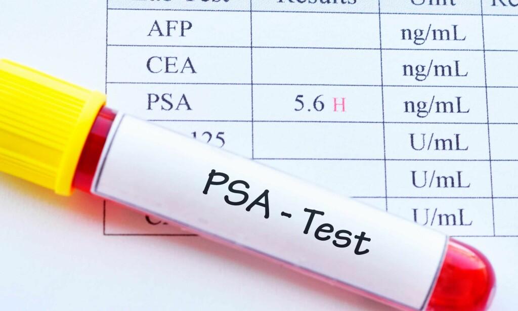 BLODPRØVE: PSA er en blodprøve som kan indikere om du har prostatakreft - men det er mange problemer knyttet til denne blodprøven. Foto: NTB Scanpix/Shutterstock