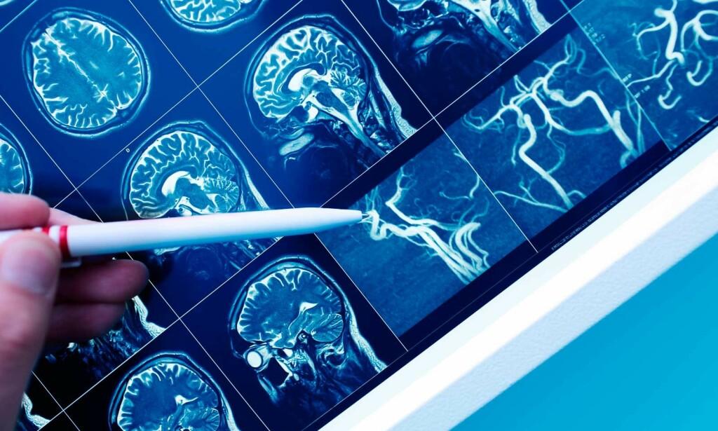 SMÅ INFARKTER I HJERNEN: MR-bildet viser blodåret i hjernen. Foto: NTB Scanpix/Shutterstock
