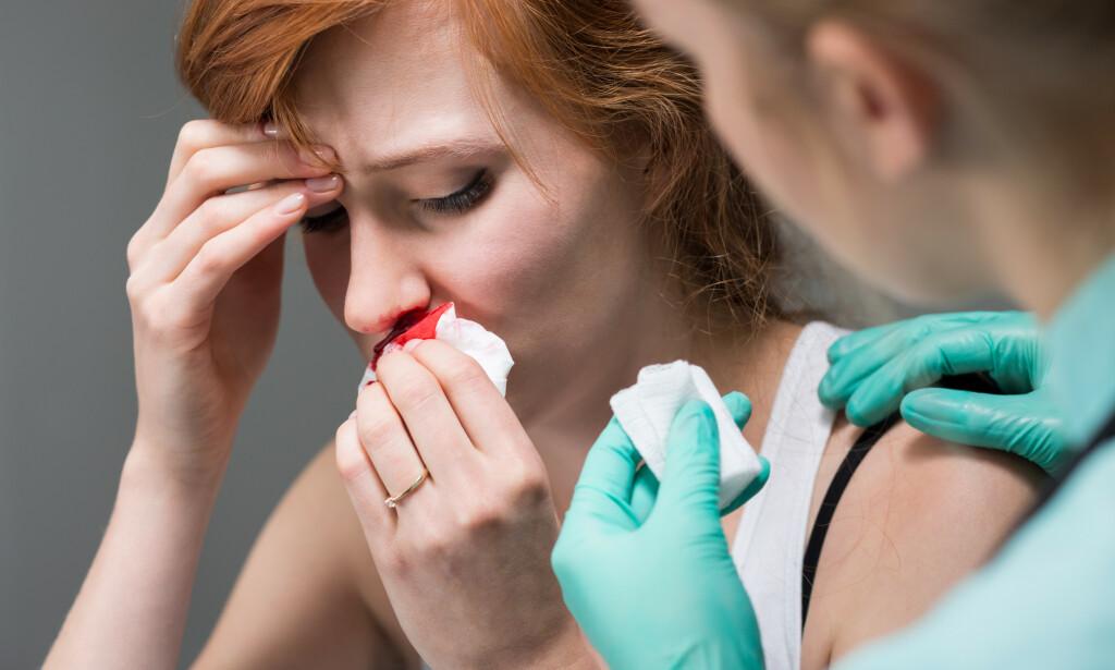 ULIKE TYPER BLØDNING: Neseblødning kan representere alt fra en fremre, uskyldig og plagsom blødning, til en bakre og mer alvorlig behandlingskrevende blødning. Foto: NTB / Shutterstock.