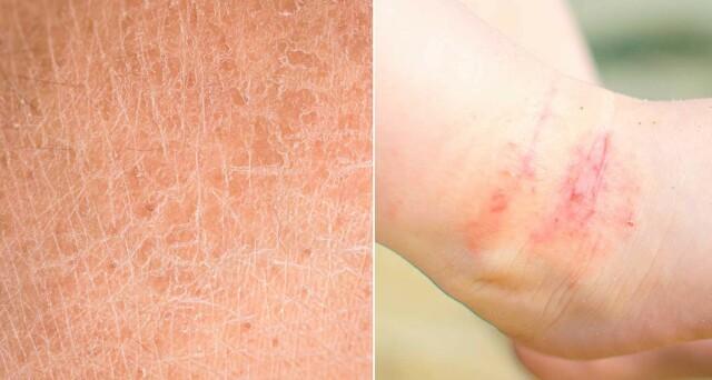 Sviende smerte i huden