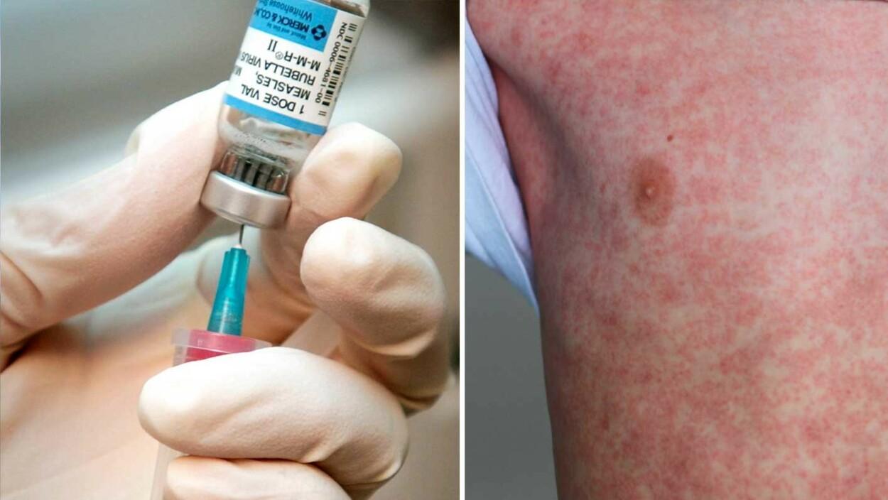 VAKSINE MOT MESLINGER: De fleste voksne er beskyttet mot meslinger, men de som ikke er vaksinert eller har hatt sykdommen trenger minst en vaksinedose. Foto: NTB Scanpix/Shutterstock.
