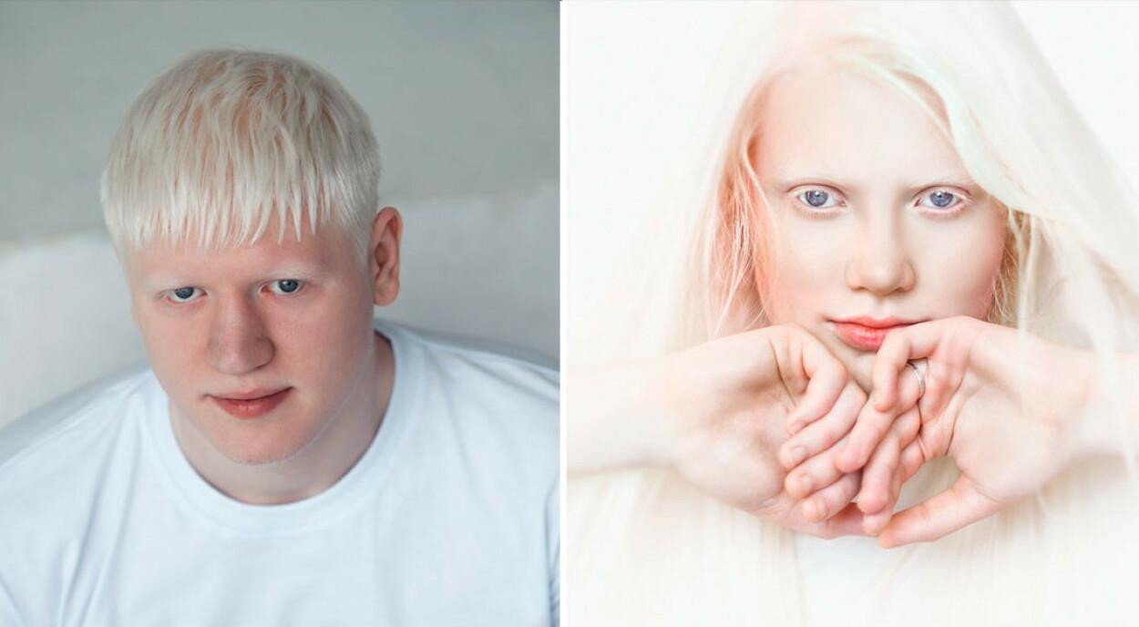 LYS HUD OG HÅR: Ved albinisme har man delvis eller komplett mangel på fargestoffet (pigmentet) melanin. Det gir lysere hud og hår enn foreldrene. Foto: NTB Scanpix/Shutterstock