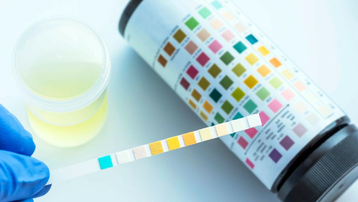 GLUKOSURI: Via en enkel test kan man måle hvor mye sukker urinen inneholder. Hvis det er for mye sukker i urinen, kan det være et tegn på sykdom. Foto: NTB Scanpix/Shutterstock