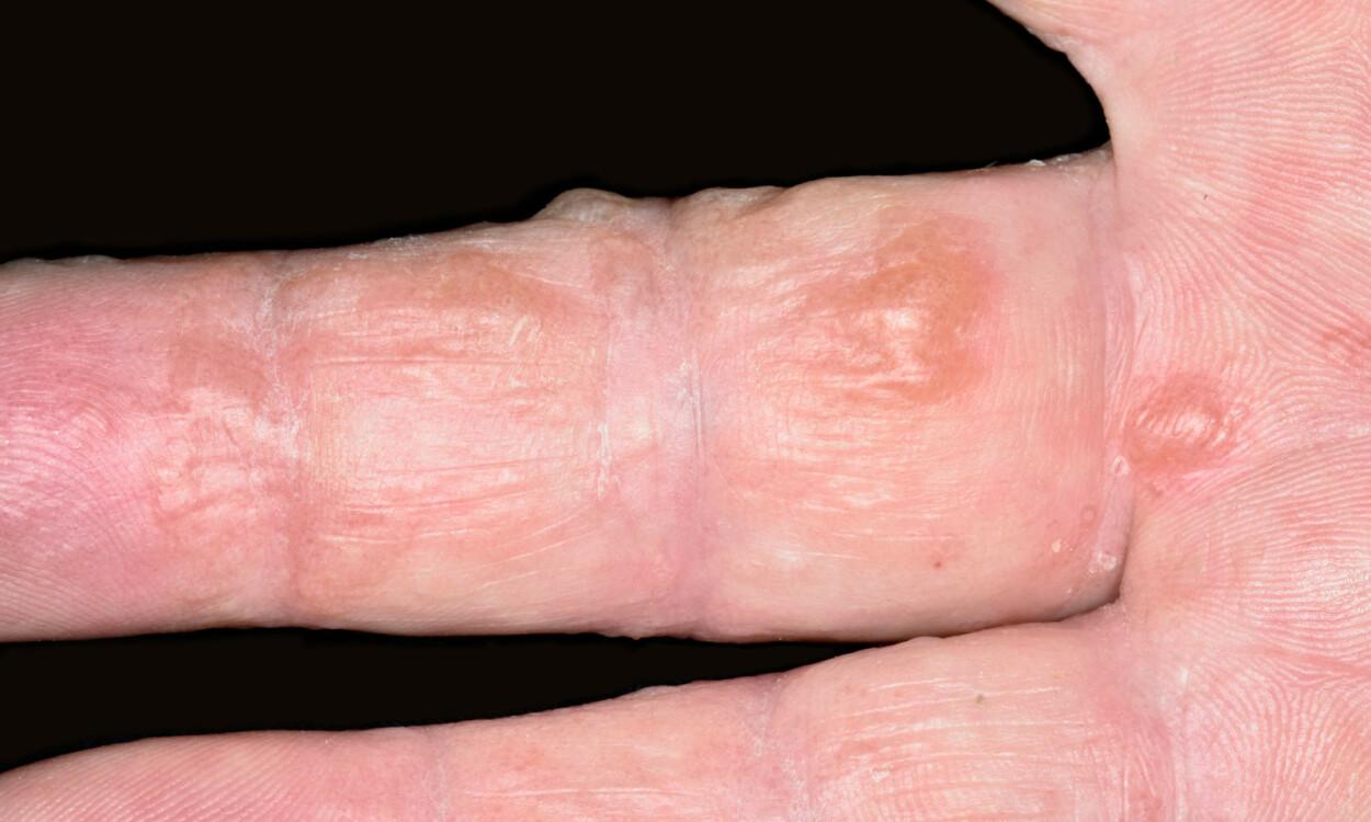 BLEMMER PÅ FINGRE SOM KLØR: Sterk kløe og en brennende følelse på hendene og fingrene. Utbrudd av vanligvis små, væskende blemmer som ligger dypt i huden. Foto: NTB Scanpix/Science Photo Library